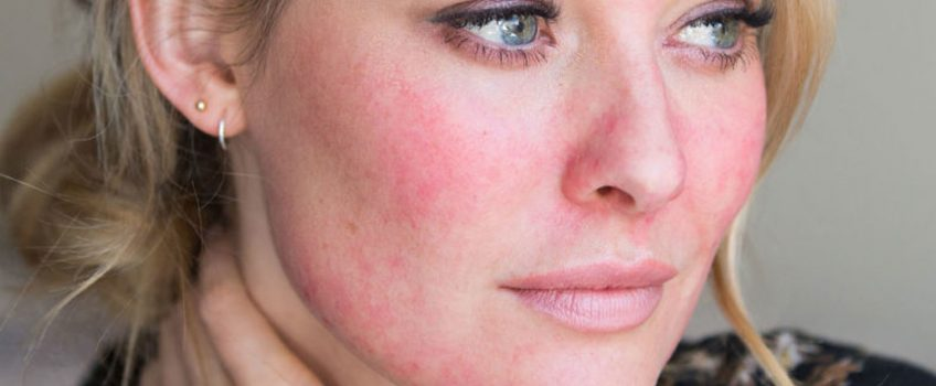 Skin Redness, Pimples or Rosacea