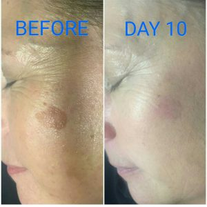 CryoClear Before - After