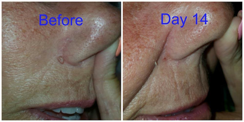 Skin Tag Nose