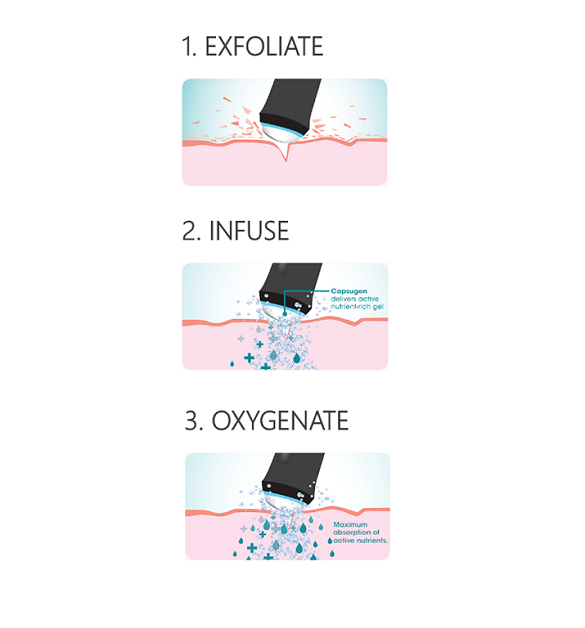 OxyGeneo™ cleanses the skin