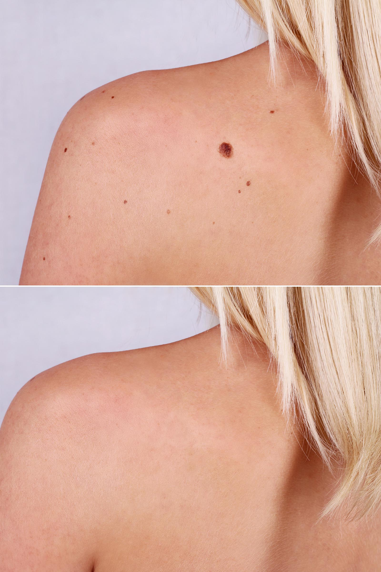 How to safely remove moles